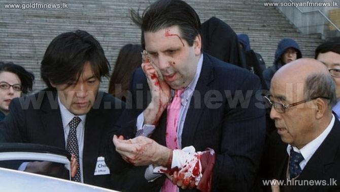 US+ambassador%27s+face+SLASHED+in+Seoul