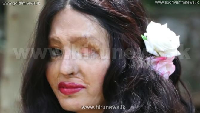 Awe-inspiring+story+of+acid+attack+survivor+Reshma+Qureshi