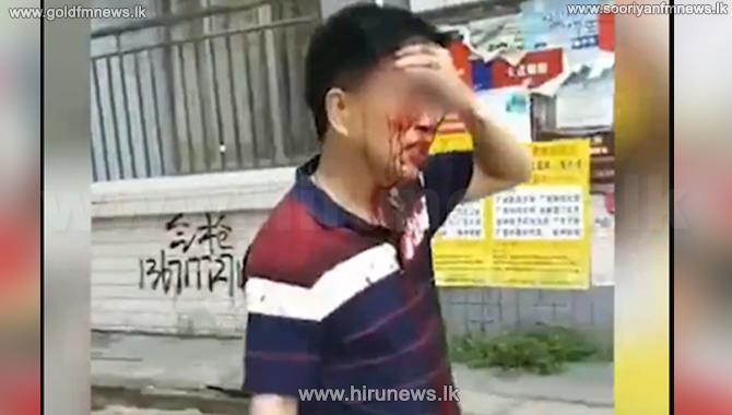37+children+injured+in+a+knife+attack+in+a+school+in+China