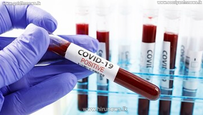 Katunayake Covid Cluster : Another 60 tested positive for coronavirus