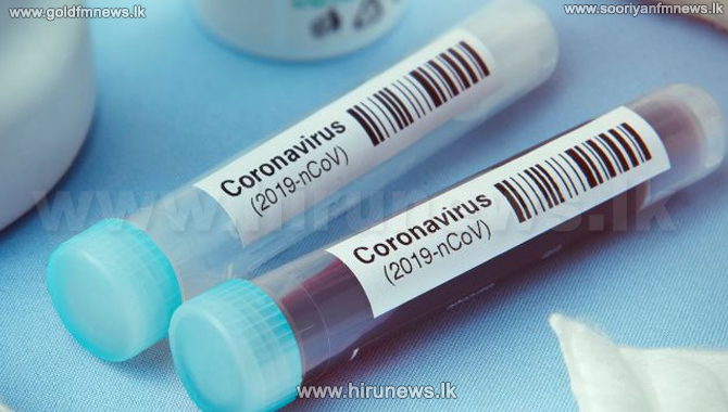 221 tested positive for Covid-19 increasing the daily count to 472